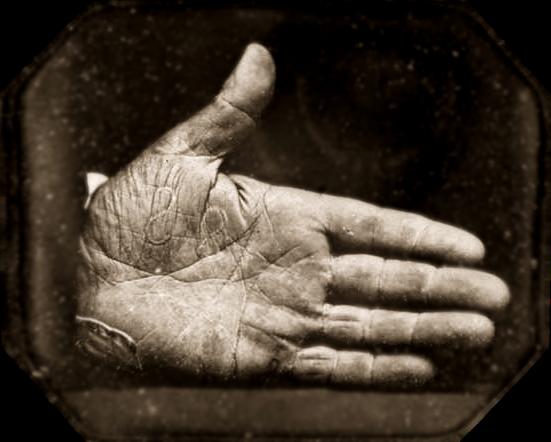 Dagherrotipo della mano marchiata del Capitano Jonathan Walker, 1845